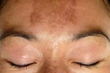 tratamento melasma pele mulher brasileira