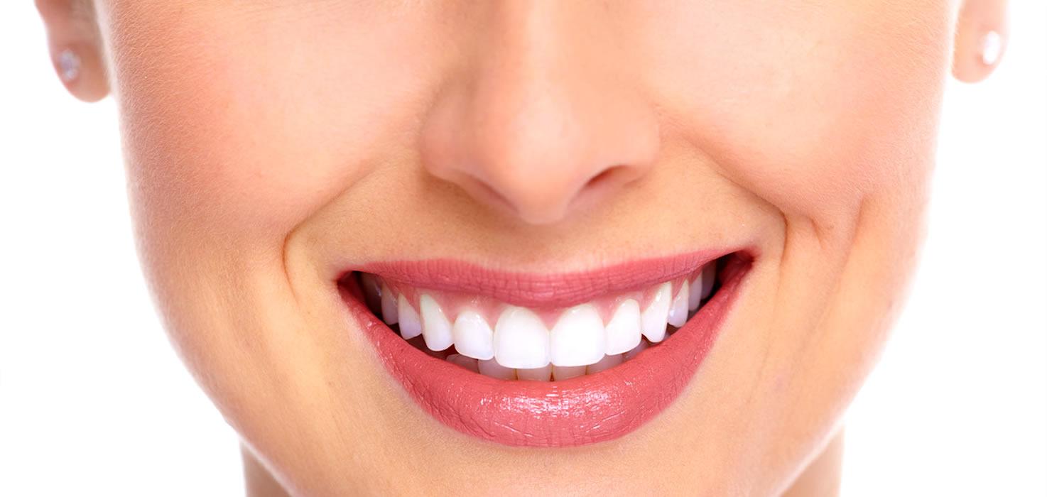 lente de contato dental bucal