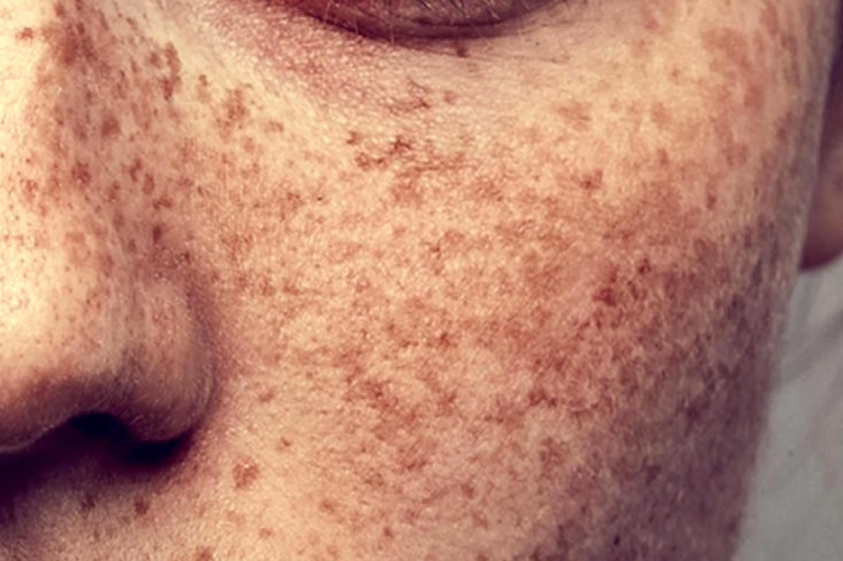 como disfarcar manchas na pele maquiagem